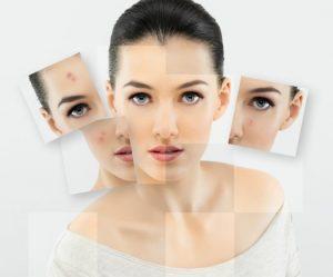 cildinizdeki degisimler hastaliklarin habercisi olabilir