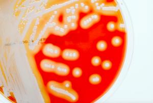 okullarin acilmasiyla artis gosteren enfeksiyon beta