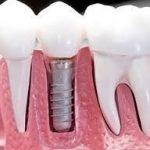 icerik oral implantoloji 1 1