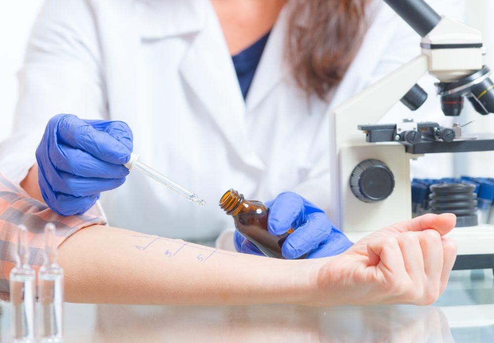 Alerji Laboratuvarı (Alerji Testleri)