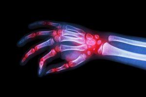 romatoid artrit hakkinda merak edilenler