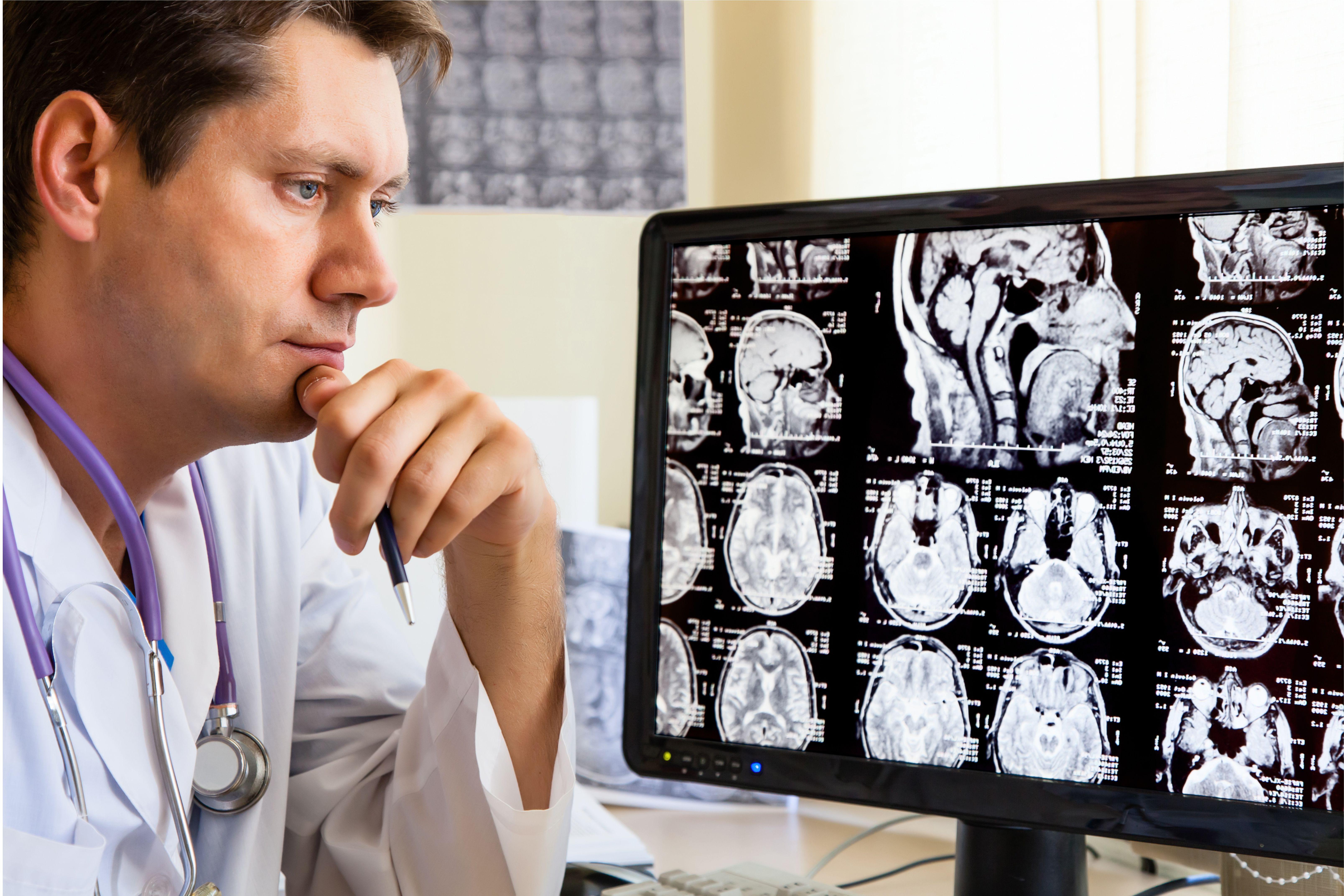 Beyin ve Sinir Cerrahisi