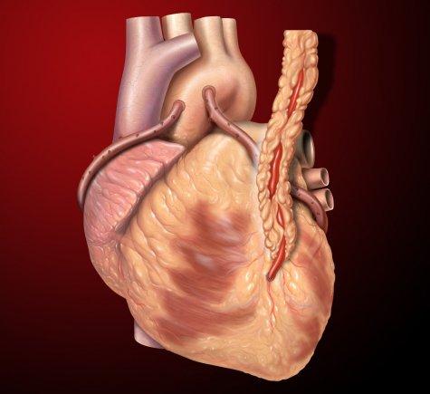 Aort Kapak Hastalıkları ve Anevrizma Cerrahisi