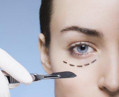 Göz Kapağı Estetiği (Blefaroplasti)
