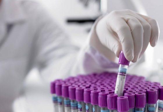 Kısırlık (İnfertilite) Testleri