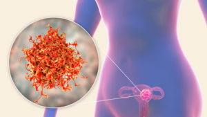 rahim kanseri evreleri